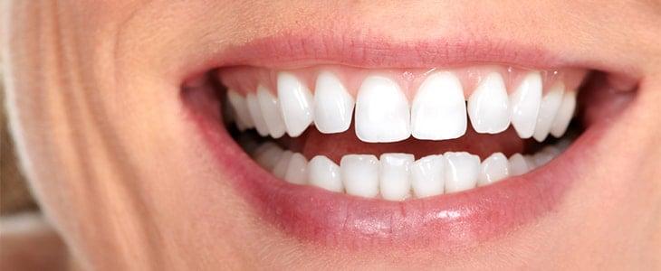 Dantų implantavimas – populiarios paslaugos